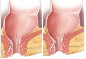Fistula Plug Procedure